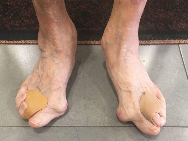 pieds de la personne agee 2